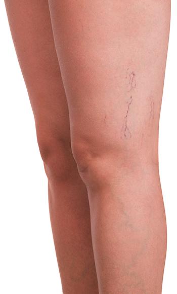nohy-zily Poradňa o vašich problémoch s kŕčovými žilami