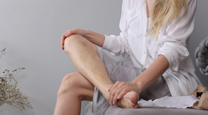 mlada zena s metlickami na nohach